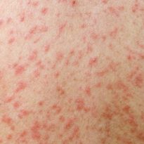 Measles outbreak in Southend-On-Sea confirmation